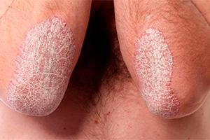 Псориаз Ногтей Лечение Лазером